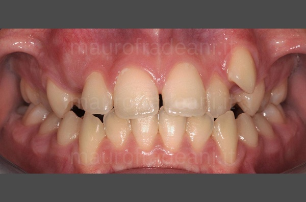 caso-clinico-ortodonzia-con-corticotomia-studio-dott-fradeani