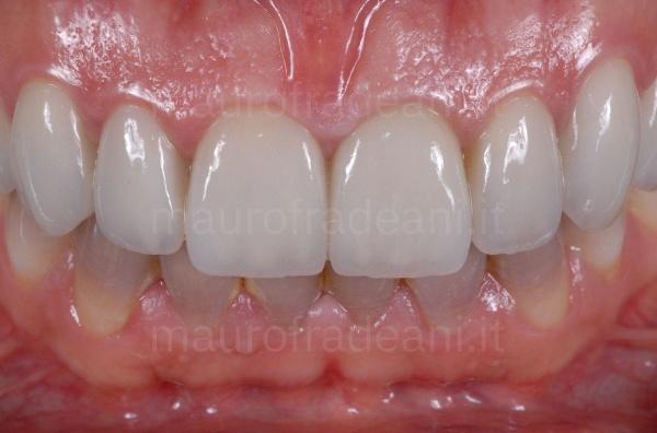 caso-clinico-faccette-odontoiatriche-paziente-con-discromia-mauro-fradeani
