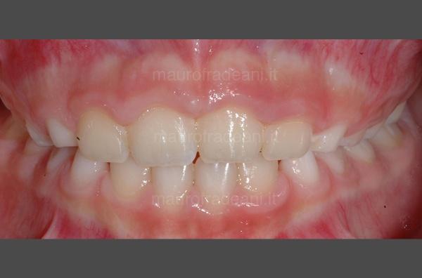 caso-clinico-ortodonzia-pediatrica-studio-fradeani-dopo