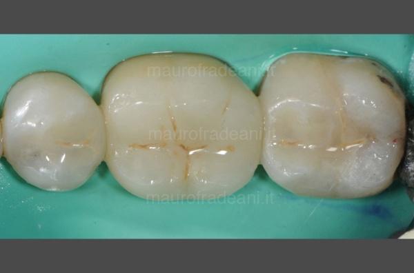 14-caso-clinico-odontoiatria-conservativa-dott-mauro-fradeani-post-trattamento