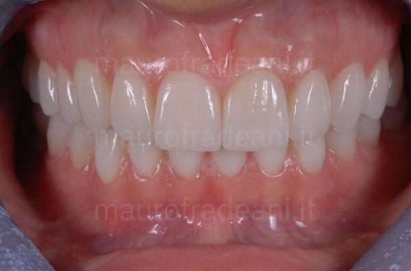 Dott. Fradeani caso clinico riabilitazione estetico-funzionale per marcata e diffusa usura dentale