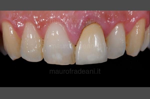 Caso clinico corona ceramica su impianto dente anteriore Dottor Mauro Fradeani