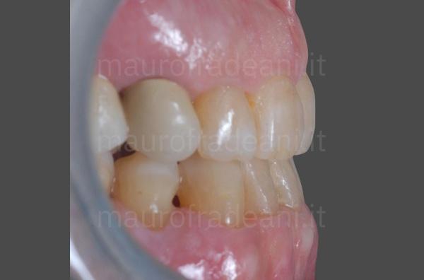 caso-clinico-ortodonzia-paziente-adulto