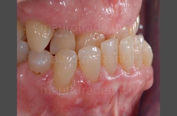 caso-clinico-ortodonzia-paziente-adulto-dott-fradeani