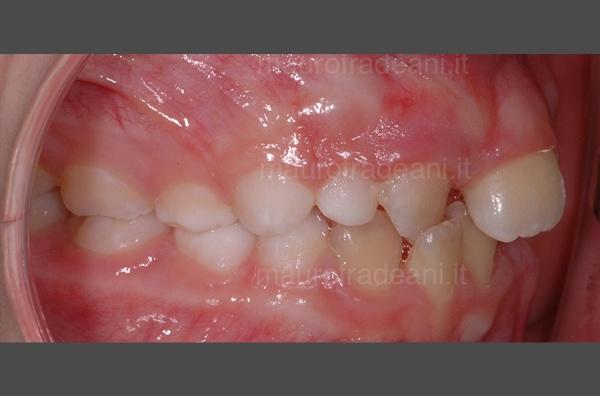 Dott. Fradeani ortodonzia precoce malocclusione e affollamento
