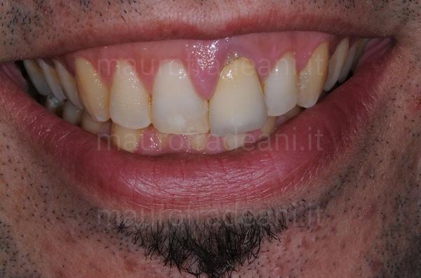 Caso clinico corona ceramica su impianto dente anteriore