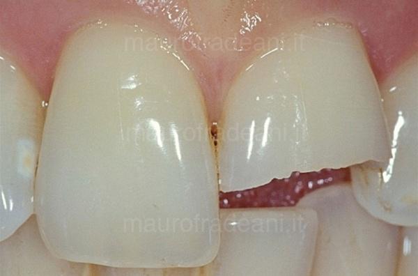 caso-clinico-ricostruzione-dente-anteriore-studio-fradeani-pesaro