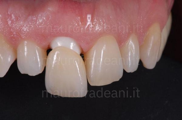 Corona dentale in ceramica su impianto Dott. Fradeani