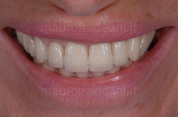 Corone in ceramica su impianti Studio Dentistico Fradeani