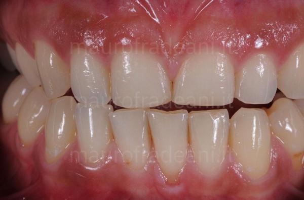 Caso clinico faccette dentali in ceramica per marcata usura dentale