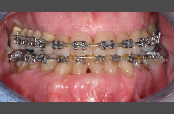 ortodonzia-paziente-adulto-dott-mauro-fradeani