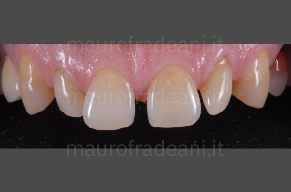 Caso clinico faccette in ceramica per eccessivi spazi tra i denti Dott. Fradeani