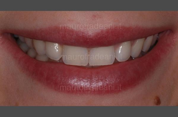 Caso clinico sbiancamento dentale domiciliare con mascherine