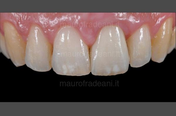 Dott. Fradeani Pesaro corona ceramica su impianto dente anteriore