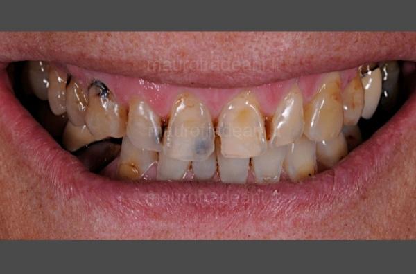 Caso clinico riabilitazione estetico-funzionale per severa compromissione dentale