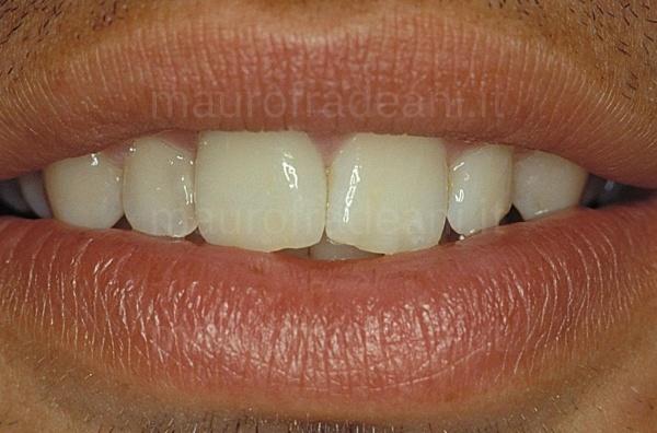Dott. Mauro Fradeani caso clinico corona in ceramica su dente anteriore già trattato
