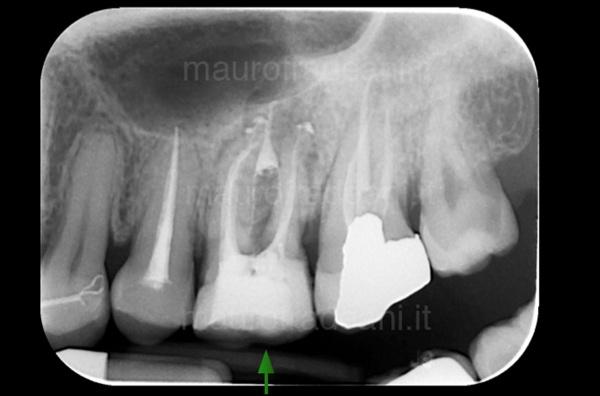 Rritrattamento dente già devitalizzato Dottor Mauro Fradeani