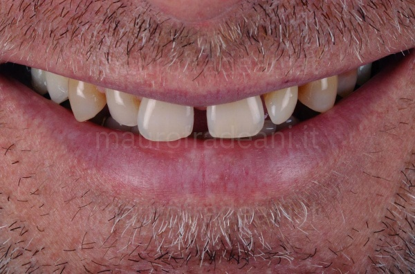 Caso clinico faccette in ceramica per eccessivi spazi tra i denti