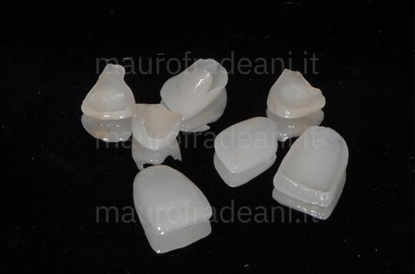Caso clinico faccette denti superiori Dott. Mauro Fradeani
