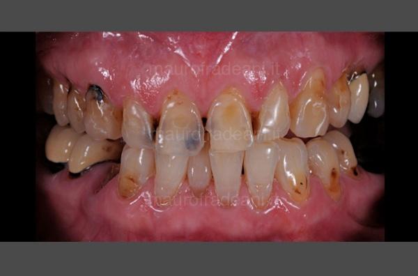 Caso clinico riabilitazione estetico-funzionale severa compromissione dentale Dott. Fradeani