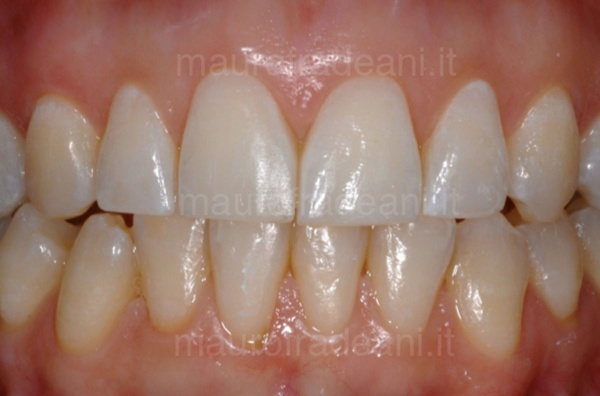Caso clinico sbiancamento dentale Dott. Mauro Fradeani