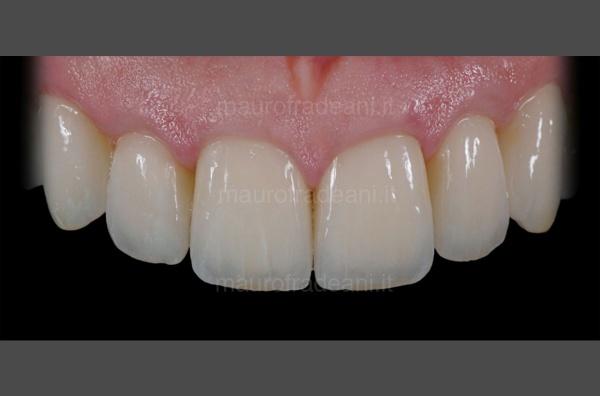Caso clinico corone in ceramica su impianti Studio Dentistico Fradeani