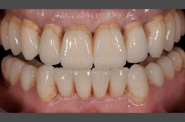 odontoiatria-estetica-impianti-mauro-fradeani-dopo-trattamento