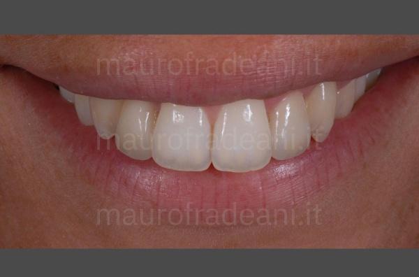 Dott. Fradeani faccette dentali in ceramica settore antero-superiore disallineato