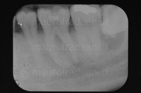 Caso clinico cura canalare dente vitale Dott. Mauro Fradeani